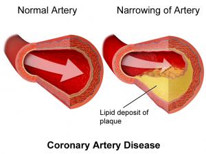 enfermedad de las arterias y diabetes